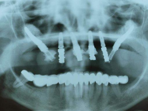 2 Implantes zigomaticos con la técnica clasica del Dr Branemark